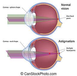 Astigmatism, a common eye defect, eps10