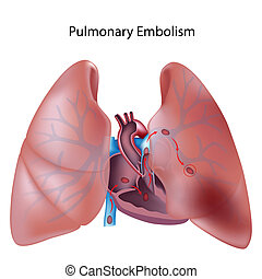 Pulmonary embolism, eps10