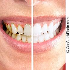 Healthy beautiful smile. Dental health. Whitening.
