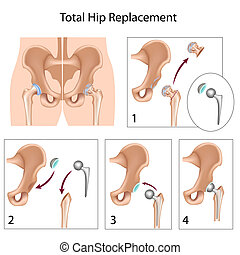 Total hip replacement surgery, eps10